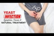How To Treat Vaginal Yeast Infection At Home | Natural Remedy