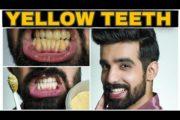 Teeth Whitening at Home|FAST| 100% EFFECTIVE|Yellow Teeth NATURAL remedy| Hindi|Men& Women