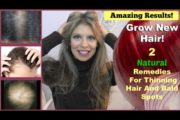 Two Treatments To Grow Hair Back | Natural Remedy for Hair Loss, Thinning, Bald Spots – Onion Juice!