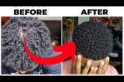 Hair Loss Journey | All Natural Remedy To REGROW YOUR HAIR