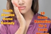 tooth abscess home remedy | 10 Home Remedies for a Tooth Abscess