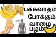 பக்க வாதம்போக்கும் வாழைப்பழம்| natural remedy | naattu maruthuvam|Tamil health & beauty/MottaMaadi