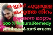 How to remove Darkcircle  100%Natural Remedy