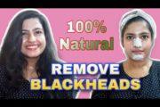 Remove BLACKHEADS & WHITEHEADS|Natural remedy|Lavish beauty with varsha