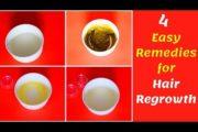 முடி கொட்டிய இடத்தில் வளர 4 வழிகள்|Hair Regrowth Home/Natural Remedy தமிழ் |Scalp care