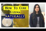 Best Home Remedy For Eczema ⭐| #HomeRemediesforEczema | Samyuktha Diaries