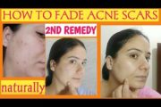 HOW TO FADE ACNE PIMPLE SCARS NATURALLY( remedy number 2)