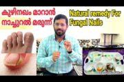 Natural Remedy For Fungal Nail, കുഴിനഖം മാറാൻ ഫലപ്രദമായ നാച്ചുറൽ മരുന്ന് പരിചയ പെടാം, Fungal Nail