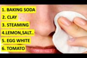 6 Natural Remedies For Black Heads You Can Use At Home