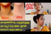 How to get rid of dark neck fast |malayalam natural remedy.