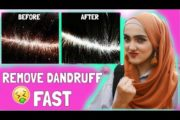 How I Got Rid Of DANDRUFF Fast! DIY NATURAL REMEDY ~Immy