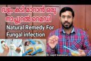 Natural Remedy For Fungal infection, കാലിലെ വളം കടി മാറാൻ ഒരു പ്രകൃതിദത്ത മരുന്ന്. Feet Fungus